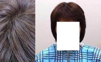 脱毛症で人毛全頭かつらをご購入のお客様 使用後