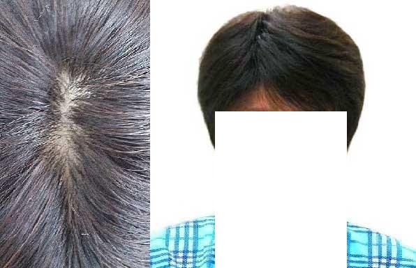 円形脱毛症で全頭かつらをご購入のお客様 使用後