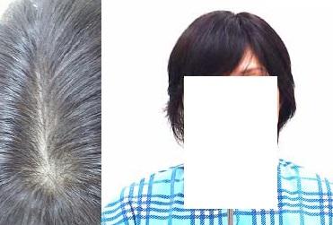 円脱毛症で人毛部分かつら(既製品)をご購入のお客様 ご使用後