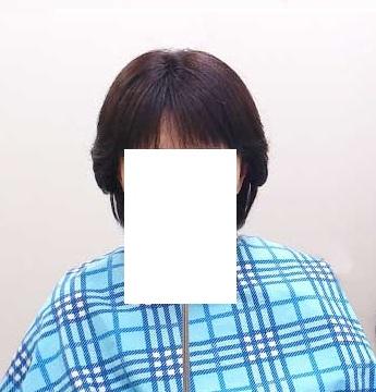 円形脱毛症で人毛100%の全頭カツラをご購入のお客様 使用後