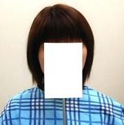 円形脱毛症で全頭かつらをご使用のお客様【戸塚よりご来店】 使用後