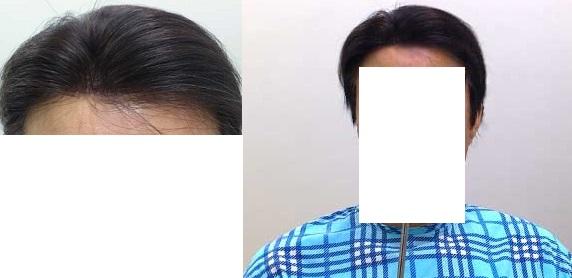 オーダーメイド部分かつらをご使用のお客様(2013年8月3日)  アートケアには20年近くお世話になっています。その前は某カツラメーカーに通ってました。私は現在80歳ですが、90歳までお世話になるつもりです。今回は8年ほど使ったカツラが傷んだのと、自分の白髪が多くなったので、今までより白髪を多くして毛の量も減らして作製していただきました。これが最後になるかもしれませんが、新しく作っていただきました。アートケアのオーナーは信頼できる方ですよ。自信を持ってお勧めできるお店です。これからもよろしく。  (神奈川県逗子市 80代・男性)  【アートケアより】お写真のご協力ありがとうございました。もう20年近く経つんですね。これからもお洒落でダンディーでいてくださいね。今回オーダーしていただいたカツラは、お客様のご希望で自然さも大切だが耐久性重視ということで作製させていただきました。8年間使用されたカツラより白髪を多くして、毛量も減らしました。今回も大事に使ってくださいね。これからもよろしくお願いいたします。