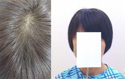 円形脱毛症で人毛100%の既製品部分かつらをご使用のお客様
