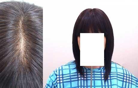 脱毛症で人毛全頭オーダーかつらをご購入のお客様 使用後