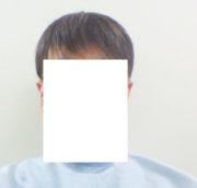 2020年3月24日 円形脱毛症で地毛カットのお客様(横浜よりご来店)